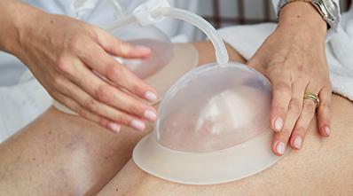 Elektro cupping - behandling med sugekopper
