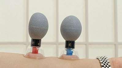 Magnet akupunktur