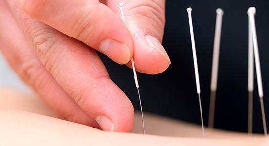 akupunktur behandling med nåle